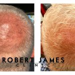 PRP Hair Growth Results